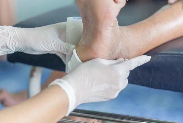 به کارگیری روش بومی ترمیم زخم پای دیابتی با لارو مگس