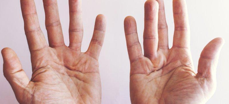 از بیماری کف دست چه می دانید؟