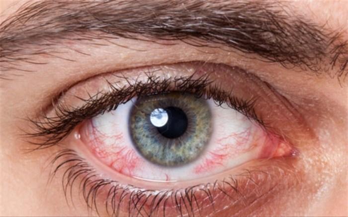 به تعویق انداختن درمان کدام یک از بیماری&zwnjهای چشمی خطرناک است؟
