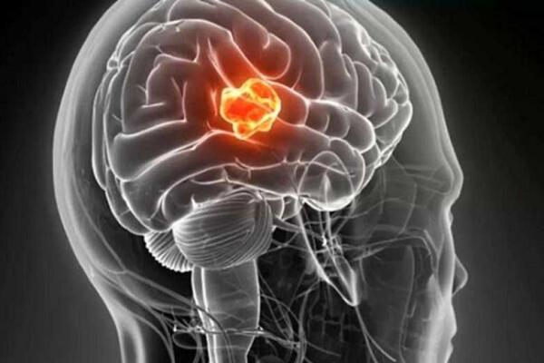 تفاوت تومور مغزی خوش خیم با بدخیم