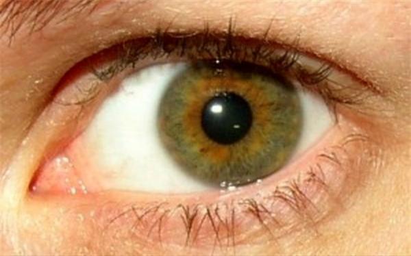 امکان التهاب چشم در تهاجم کووید 19 وجود دارد