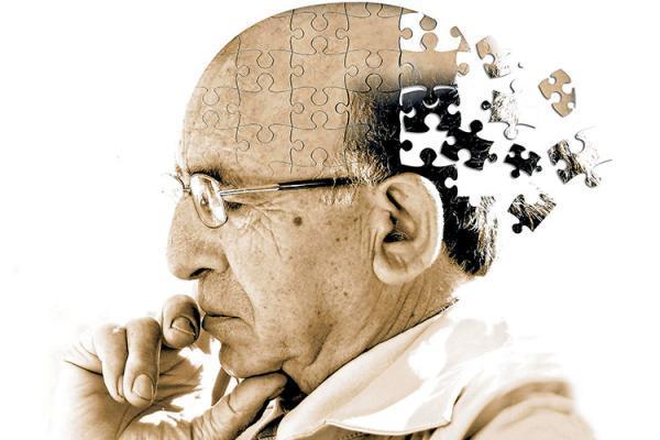 شناسایی 4 نوع متفاوت از آلزایمر
